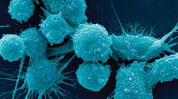 prostate_cells2